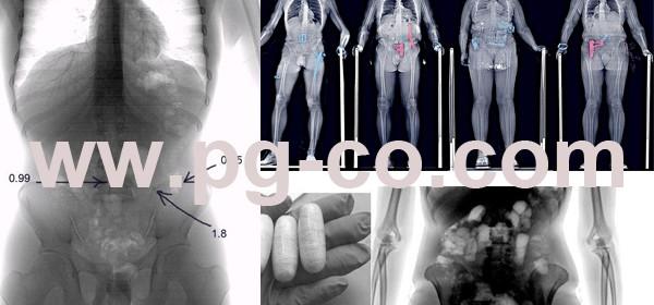 تصویربرداری ایکس ری جهت بازرسی اشخاص